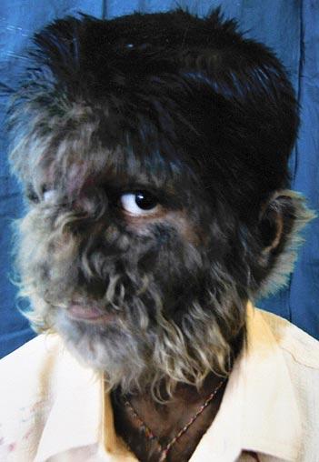 http://3296werewolves.pbworks.com/f/1289777306/werewolf-boy-portra_671230n.jpg
